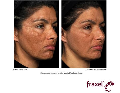 acne help picture 13