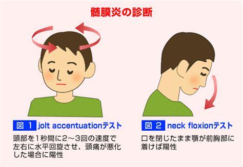 headache virus in u.k. 2015 picture 10