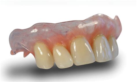 can extra h be added to flexible denture picture 13