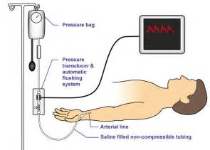 Protocol invasive monitors for blood pressure picture 2