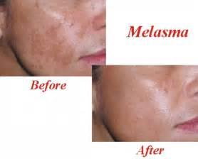 skin care green tea cream picture 9