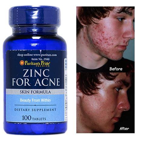 zinc acne picture 9