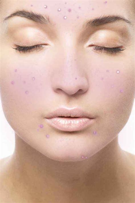 dry skin acne picture 9