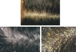 acidify in scalp hair picture 10