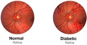 norman diabetic retinopathy picture 3