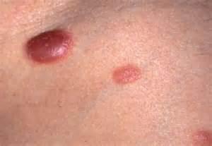 skin rash and leukemia picture 7