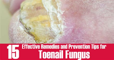 natural remedies for toenail fungus picture 7