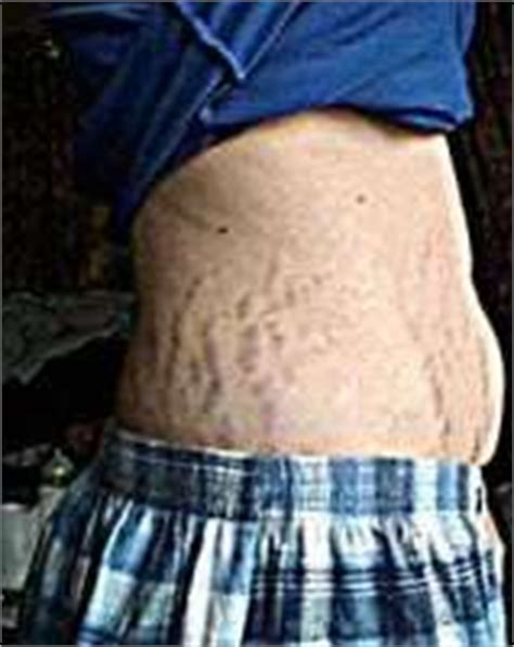 tummy tuck and stretch marks picture 9