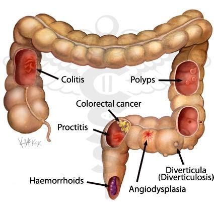 Colon polyps that cause bleeding picture 2