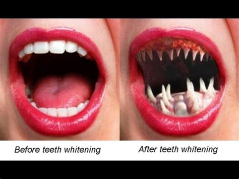 whitening strips to whiten lips picture 22
