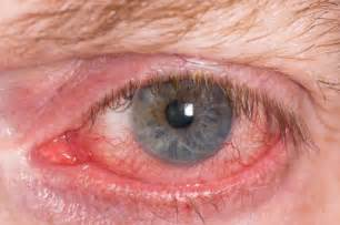 ocular aging and eye pain picture 2
