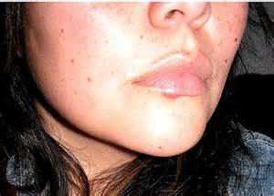 can you have herpes without having caught it picture 11