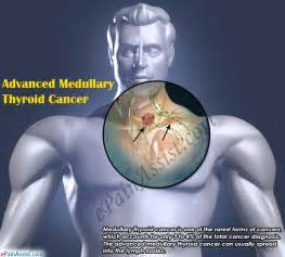 advanced thyroid cancer prognosis picture 5