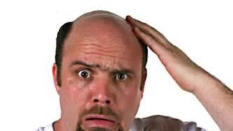 baldness picture 2