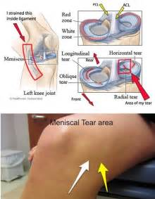 meniscus muscle picture 19