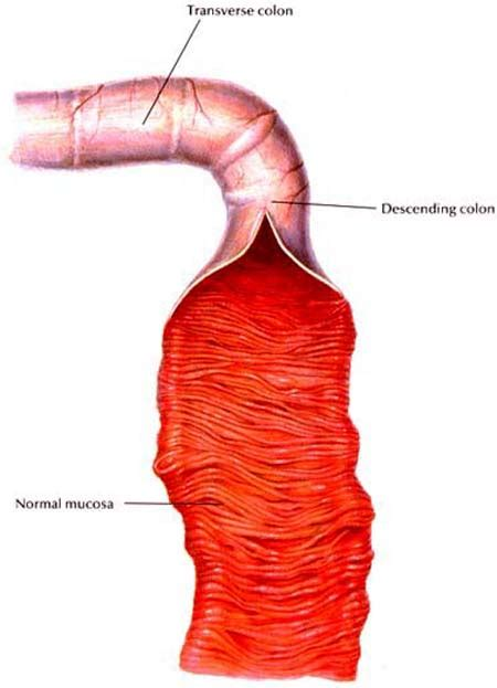 canine intestinal pain picture 6