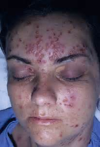herpes in the face picture 2