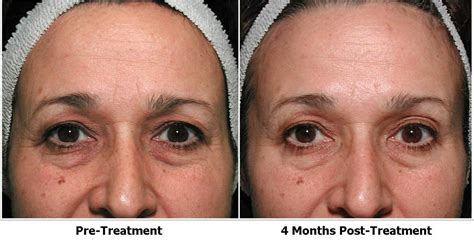 consumers acne scars thermage picture 19