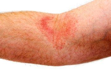 common skin rashes picture 13