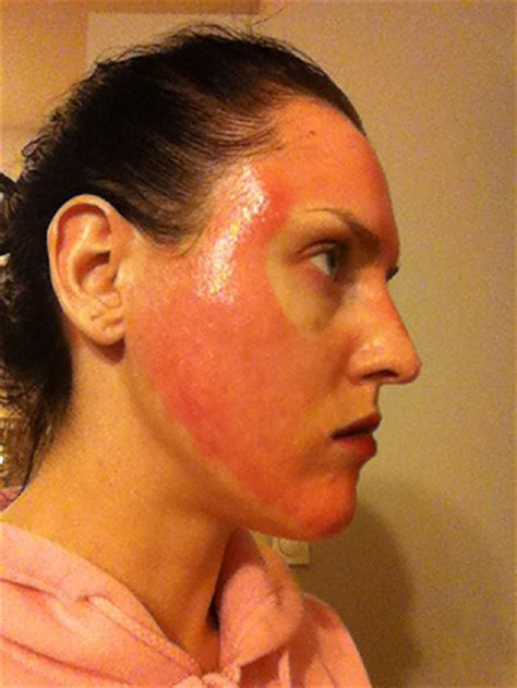 severe itching after fractional co2 laser treatment 10 picture 1
