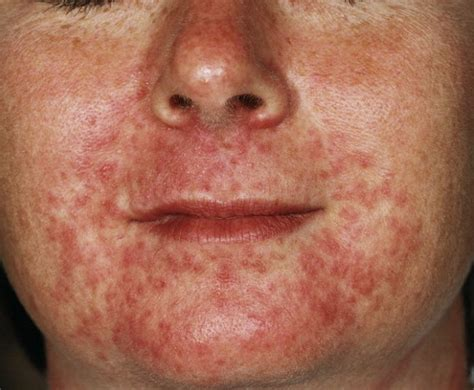 acne like rash that itches picture 2