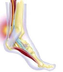 vitamins for tarsal tunnel syndrome picture 6