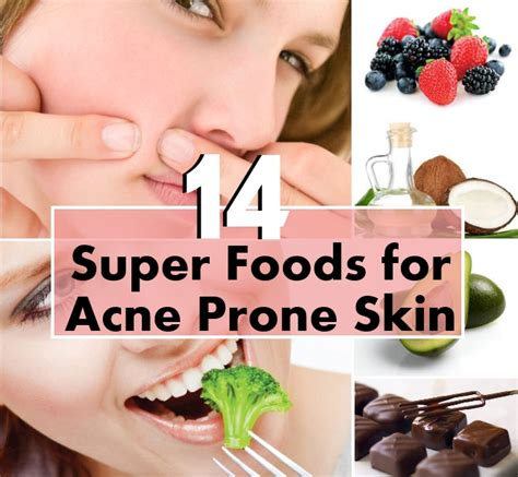 foods for acne picture 17