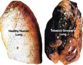 smoke cigarettes have advanced liver disease picture 2