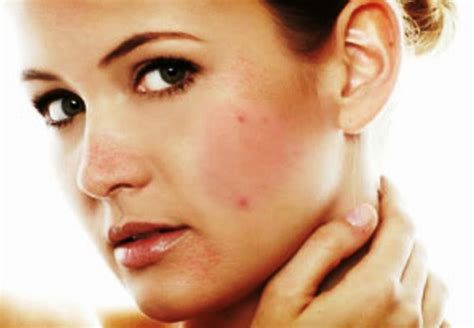 acne caused by internal picture 5