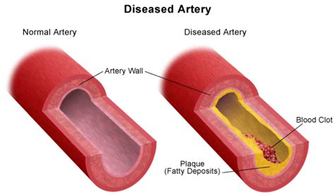 narrowing the arteries in brain herbal solutions picture 11
