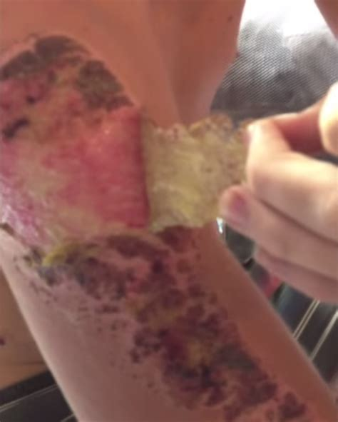 pink skin after scab falls off picture 7