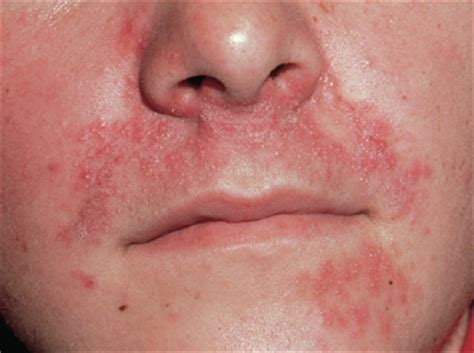 how to cure hives picture 2