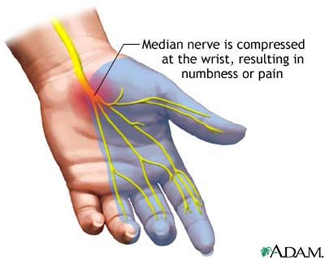 joint pain in wrist area radiating down mid picture 6