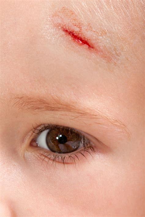 bleeding through face skin picture 1