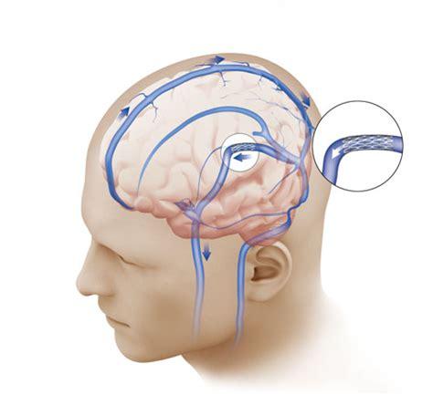 hoodia pseudotumor cerebri picture 7