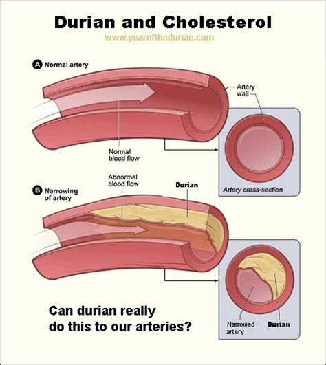 S and cholesterol picture 6