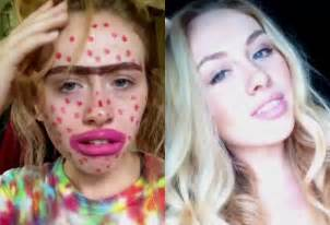 acne e book picture 2