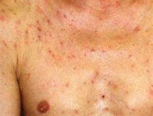 pictures of aids related skin disorders picture 3
