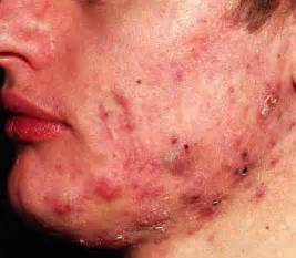 pimples blackheads whiteheads acne picture 6