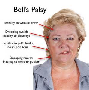 herpes simplex and balls palsy info picture 2