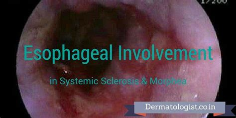 androgenic acne picture 10