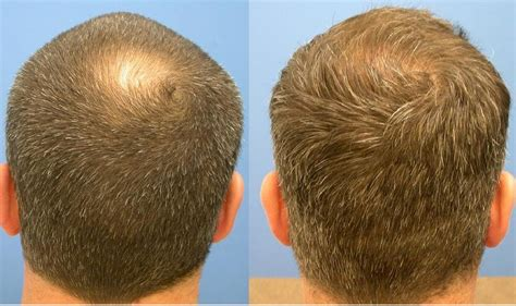 a good dose for hair loss avodart picture 4