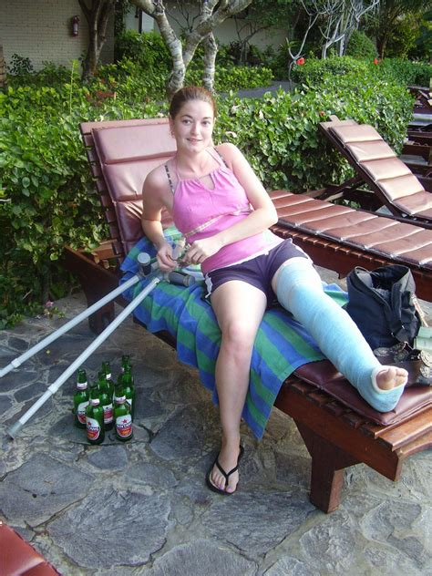 beautiful legs with sexy leg casts with high and crutches picture 10