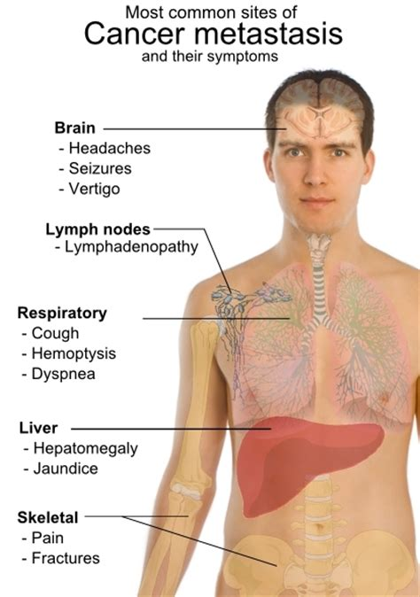 metastatic cancer with liver and lung metastas picture 9