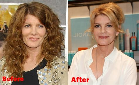 did rachel frederickson have skin surgery picture 8