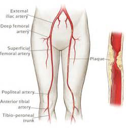 high blood pressure pain in arms and legs picture 5