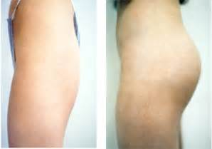 male enhancement surgery cost picture 1