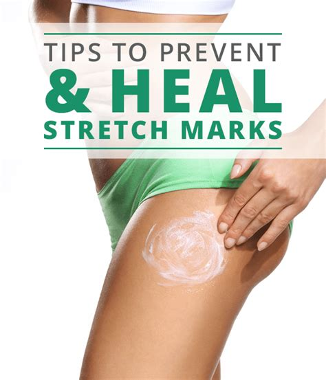 how to avoid stretch marks picture 5