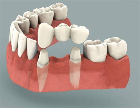 benefits of teeth cleaning picture 6