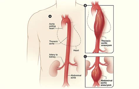 aneurysm high blood pressure picture 19